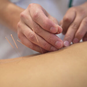 Patti Hemmings Acupuncture Harrogate