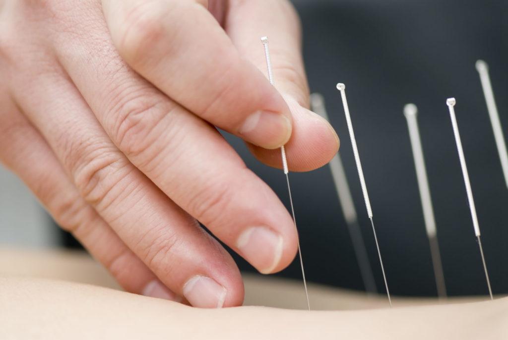 acupuncture for smoking Harrogate