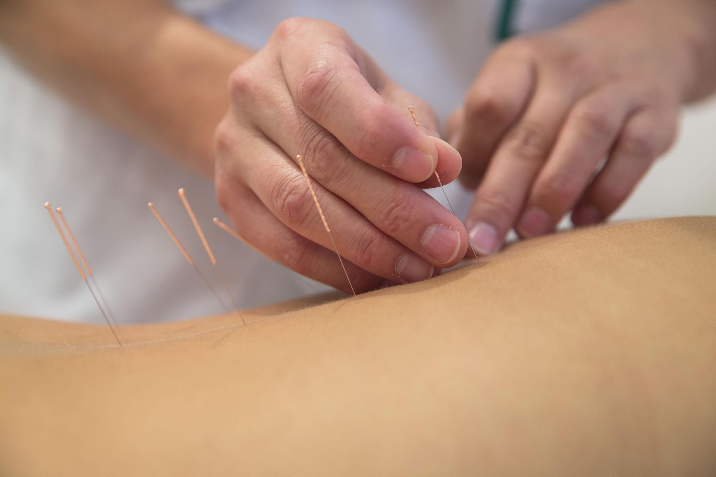 acupuncture for headaches Harrogate